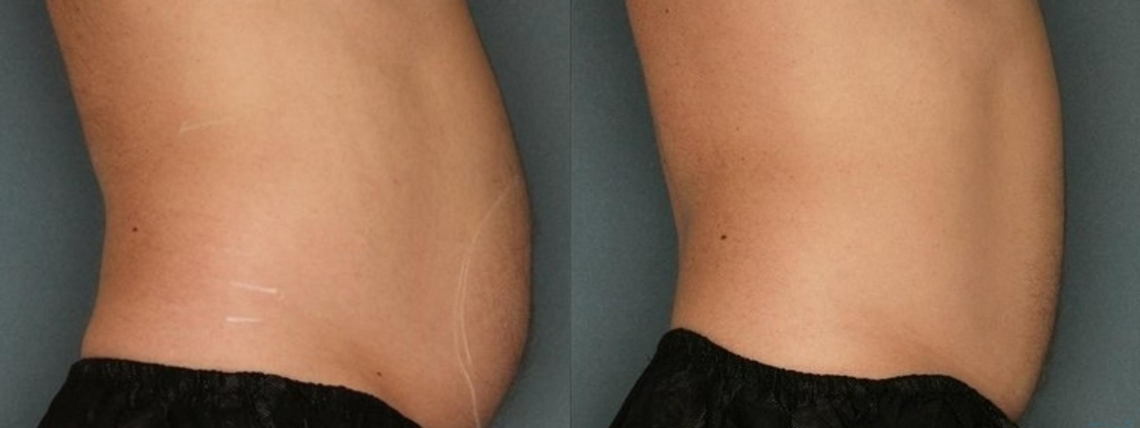 Body Contouring Case 35 Before & After Right Side | Livermore, CA | Silhouette Med Spa & Weight Management