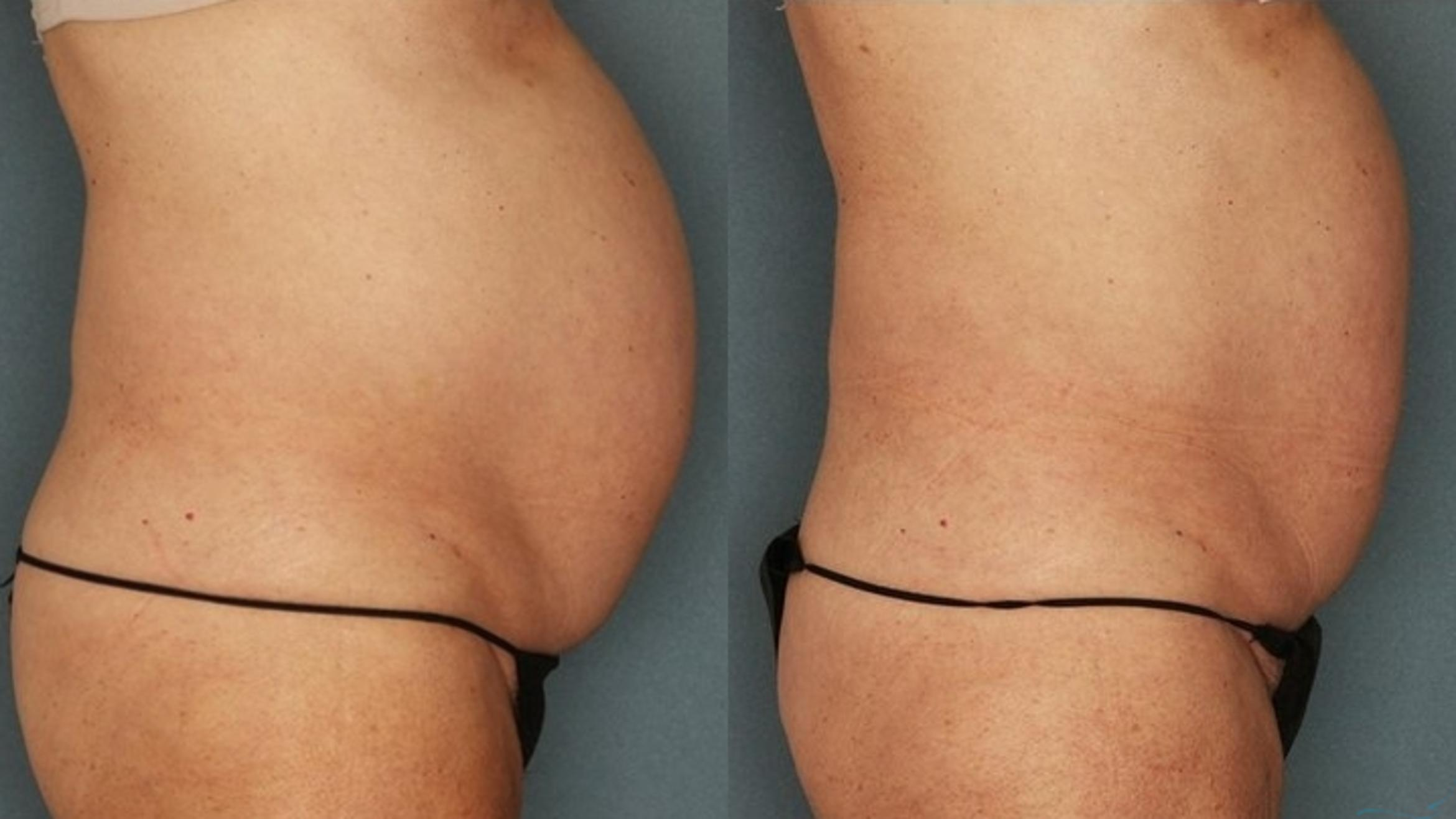 Body Contouring Case 37 Before & After Right Side | Livermore, CA | Silhouette Med Spa & Weight Management