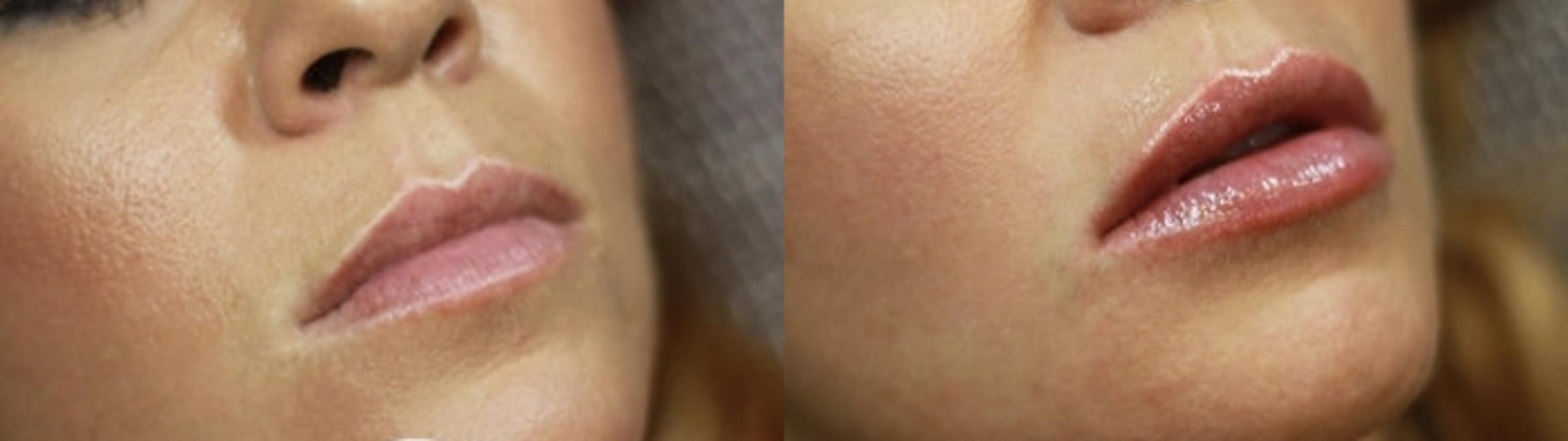 Dermal Fillers & KYBELLA® Case 18 Before & After Right Oblique | Livermore, CA | Silhouette Med Spa & Weight Management