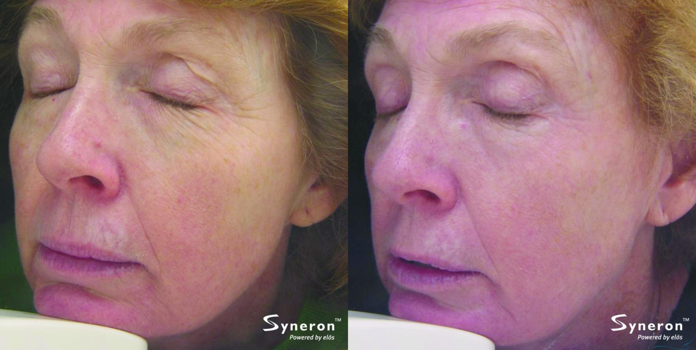 Laser Skin Rejuvenation Case 33 Before & After Left Oblique | Livermore, CA | Silhouette Med Spa & Weight Management