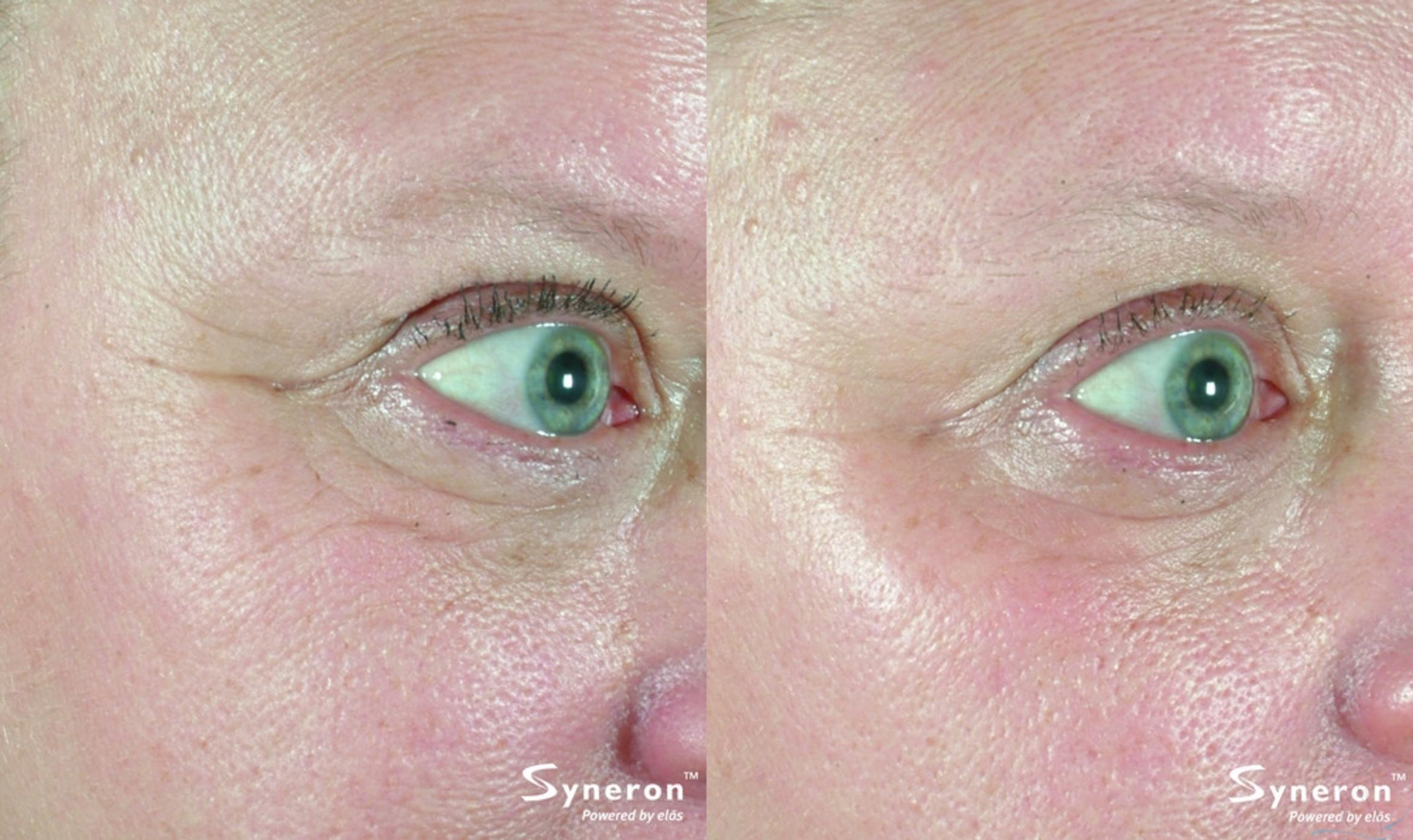Laser Skin Rejuvenation Case 34 Before & After Right Oblique | Livermore, CA | Silhouette Med Spa & Weight Management