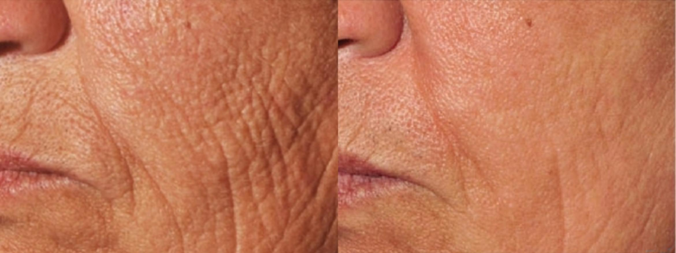 Laser Skin Resurfacing Case 16 Before & After Left Oblique | Livermore, CA | Silhouette Med Spa & Weight Management