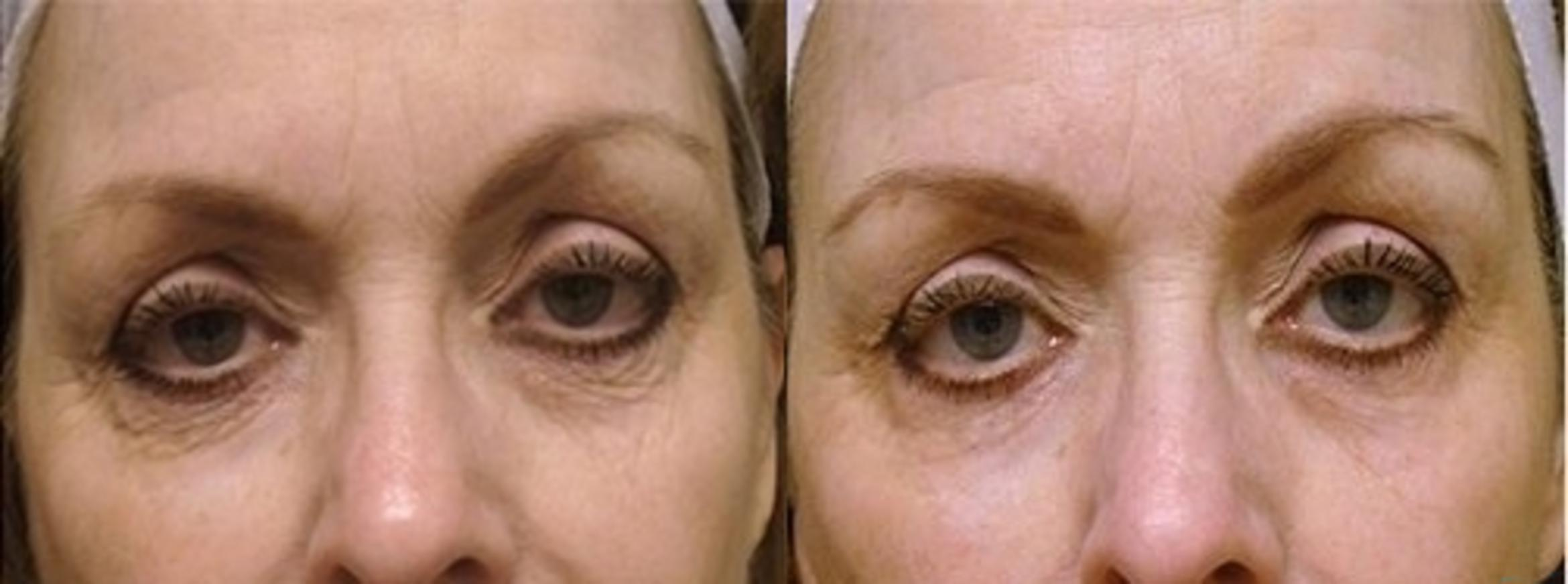 Microdermabrasion Case 6 Before & After Front | Livermore, CA | Silhouette Med Spa & Weight Management
