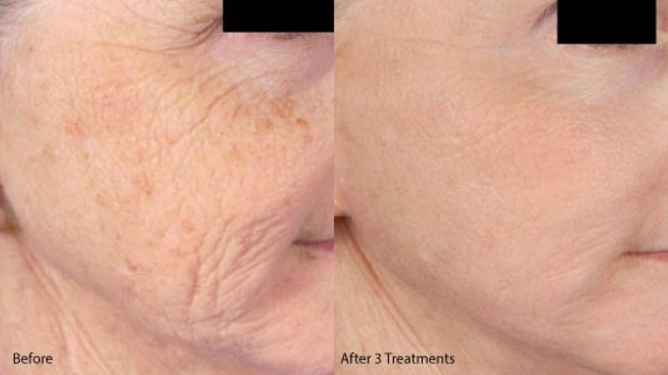 Microneedling RF & PRP Case 22 Before & After Right Side | Livermore, CA | Silhouette Med Spa & Weight Management