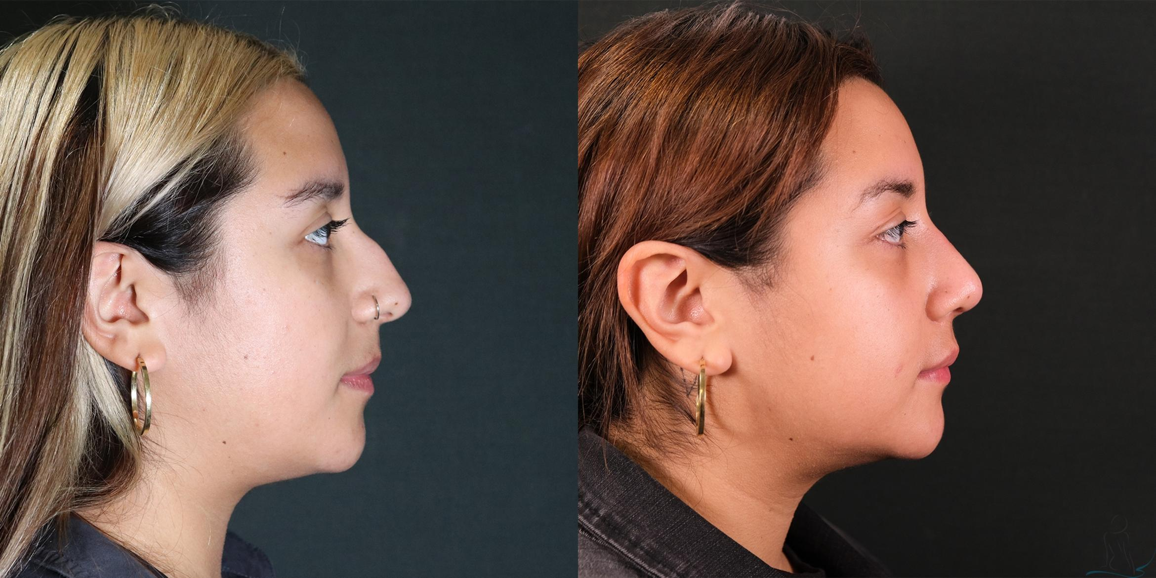 Rhinoplasty Case 77 Before & After Right Side | Livermore, CA | Silhouette Med Spa & Weight Management