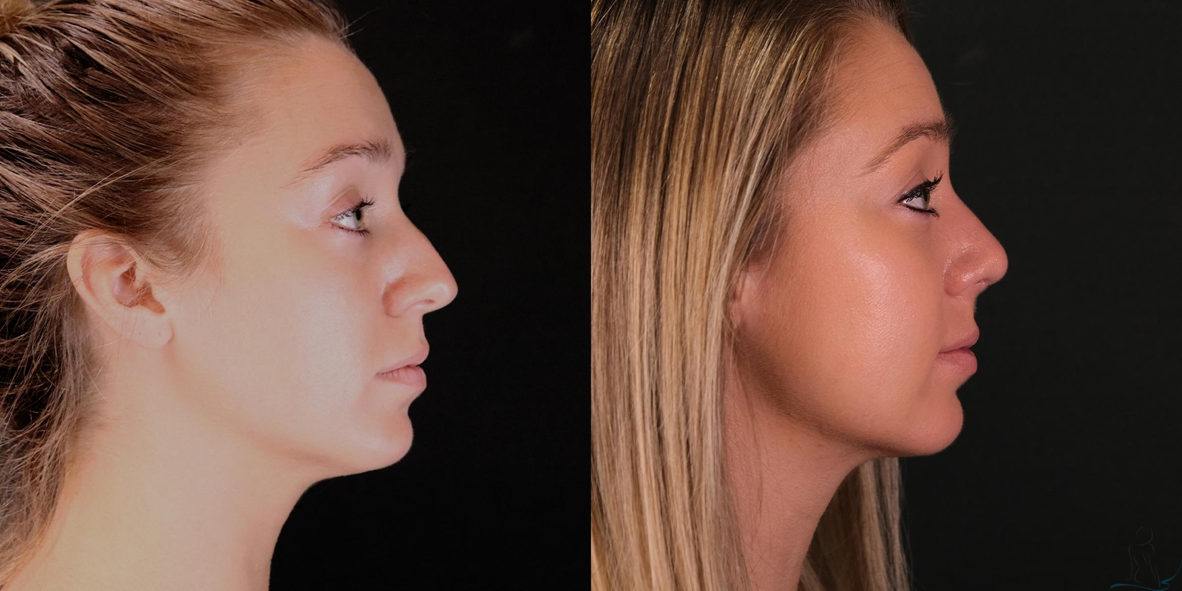 Rhinoplasty Case 79 Before & After Right Side | Livermore, CA | Silhouette Med Spa & Weight Management